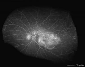 retinal laser scan eye image