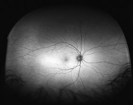 retinal scan image of the eye